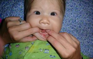 AJ-Teeth-001